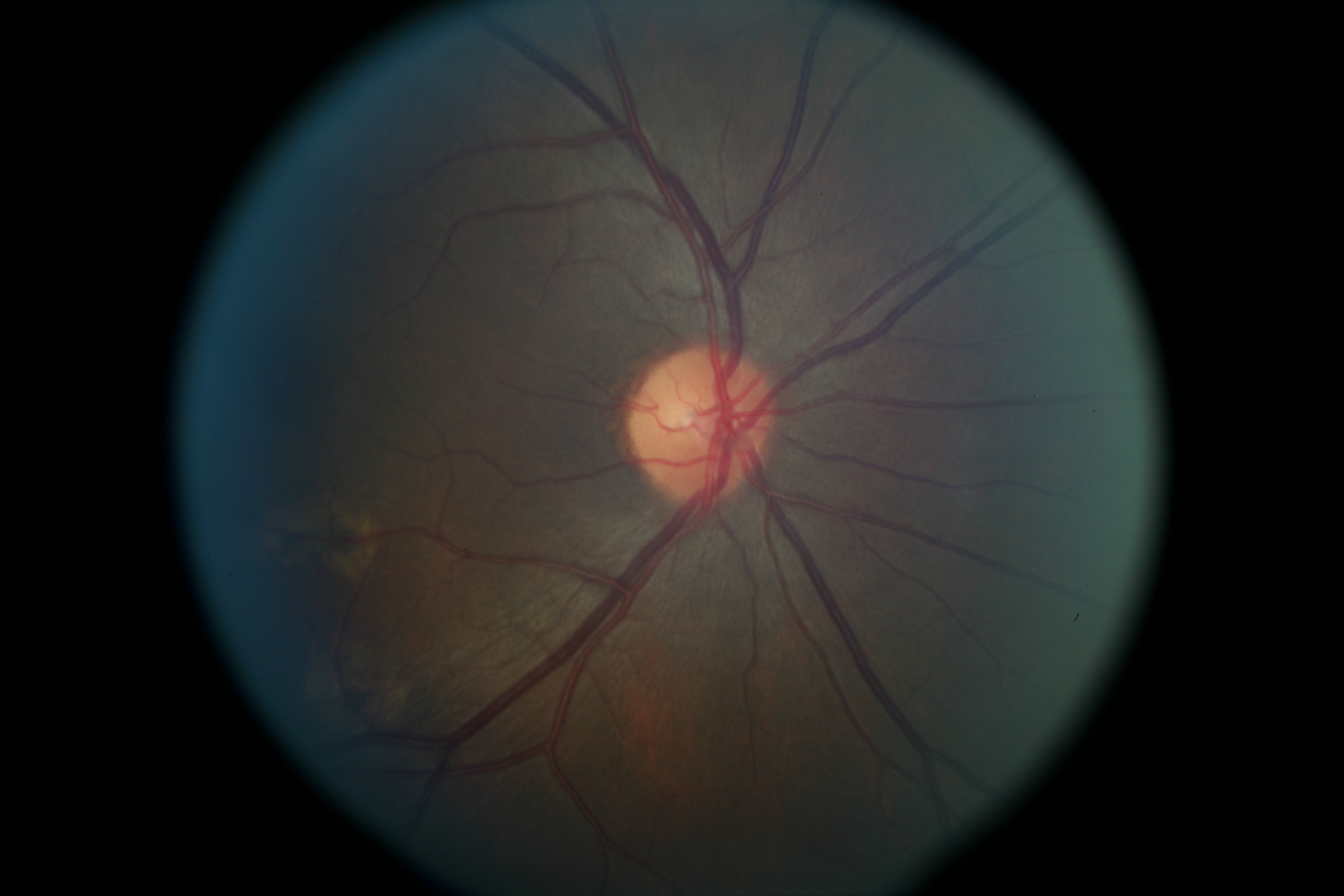 // <p>Right Optic Nerve</p>