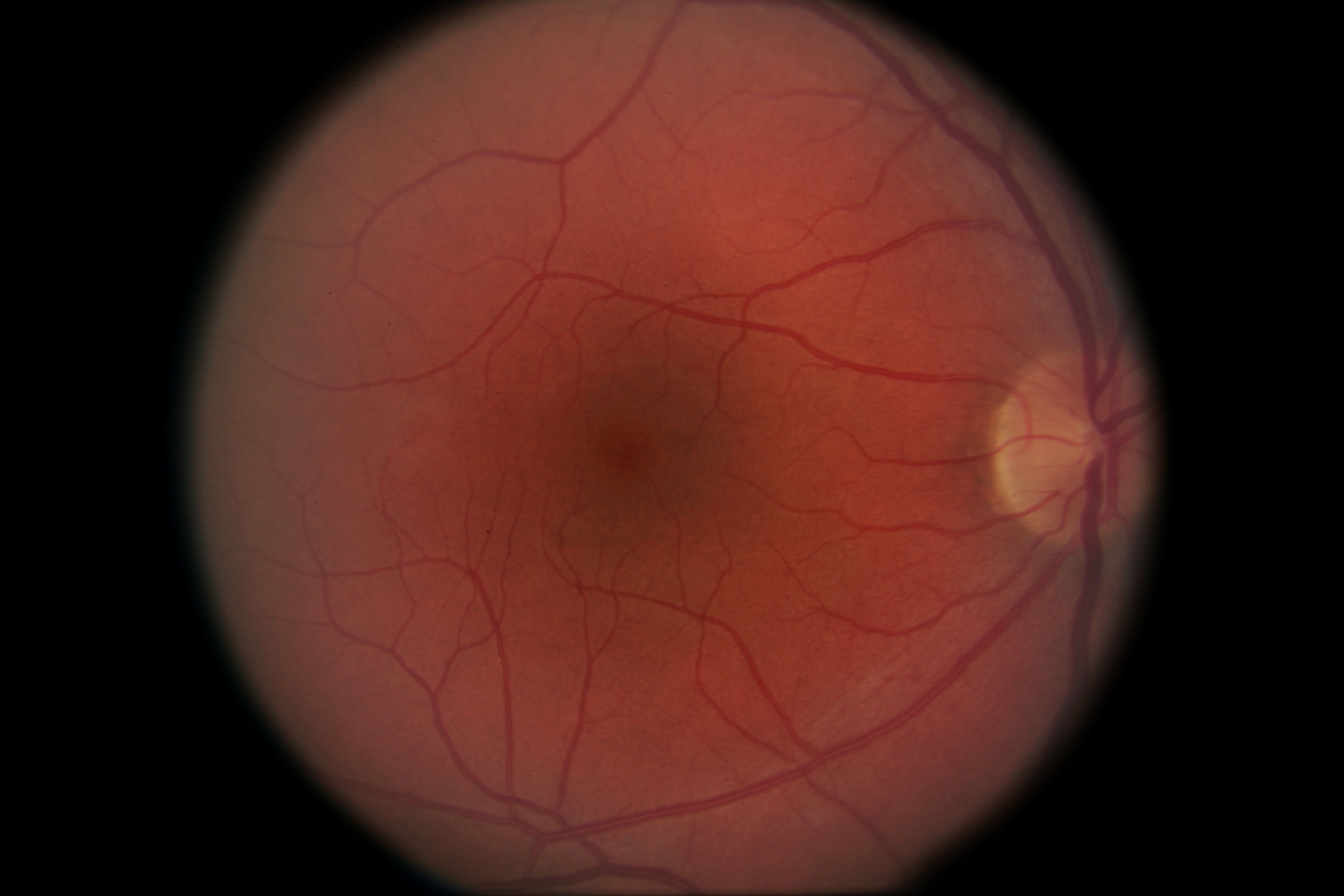 // <p>Normal Right Macula</p>