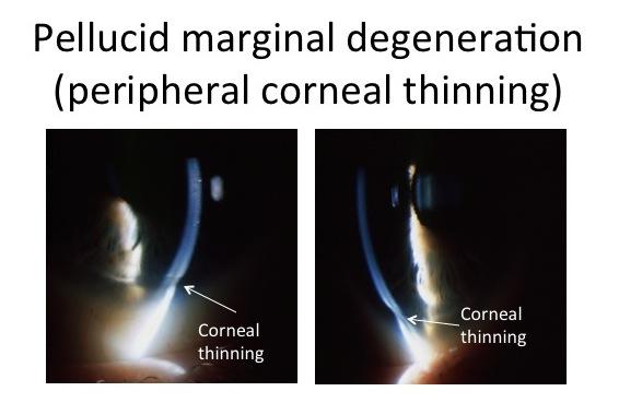 // <p>Pellucid Marginal Degeneration</p>