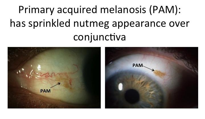 // <p>Primary Acquired Melanosis (PAM)</p>