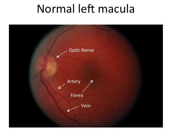 // <p>Normal Left Macula</p>