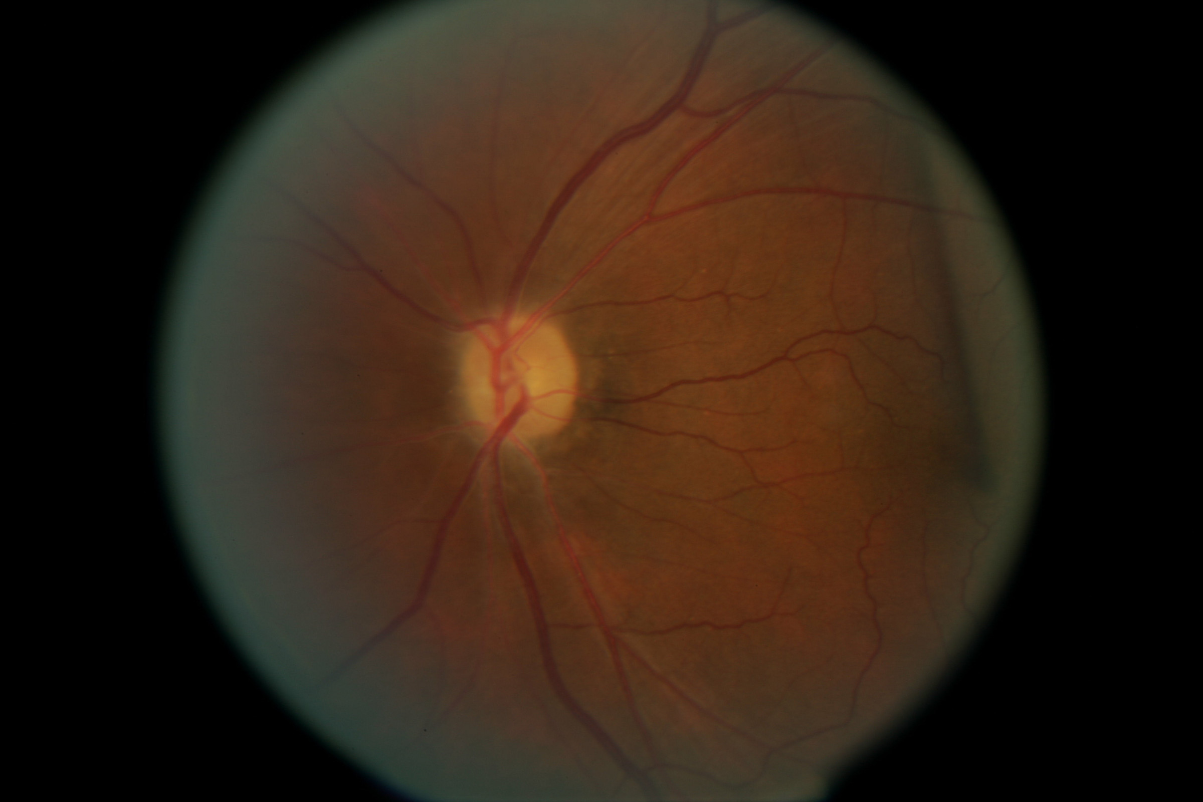 // <p>Left Eye Optic Nerve Pollar</p>