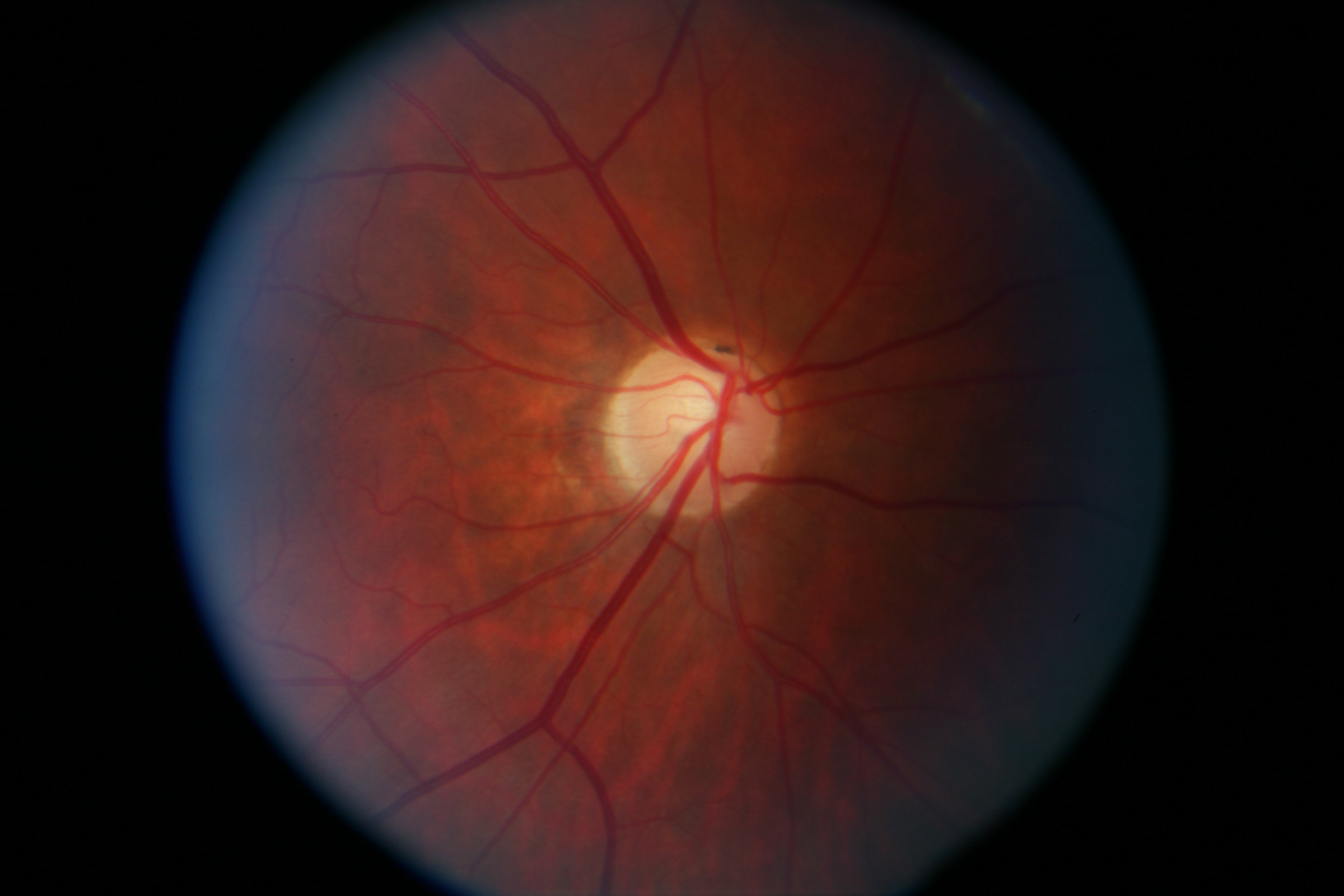 // <p>Right Eye Optic Nerve Pollar</p>