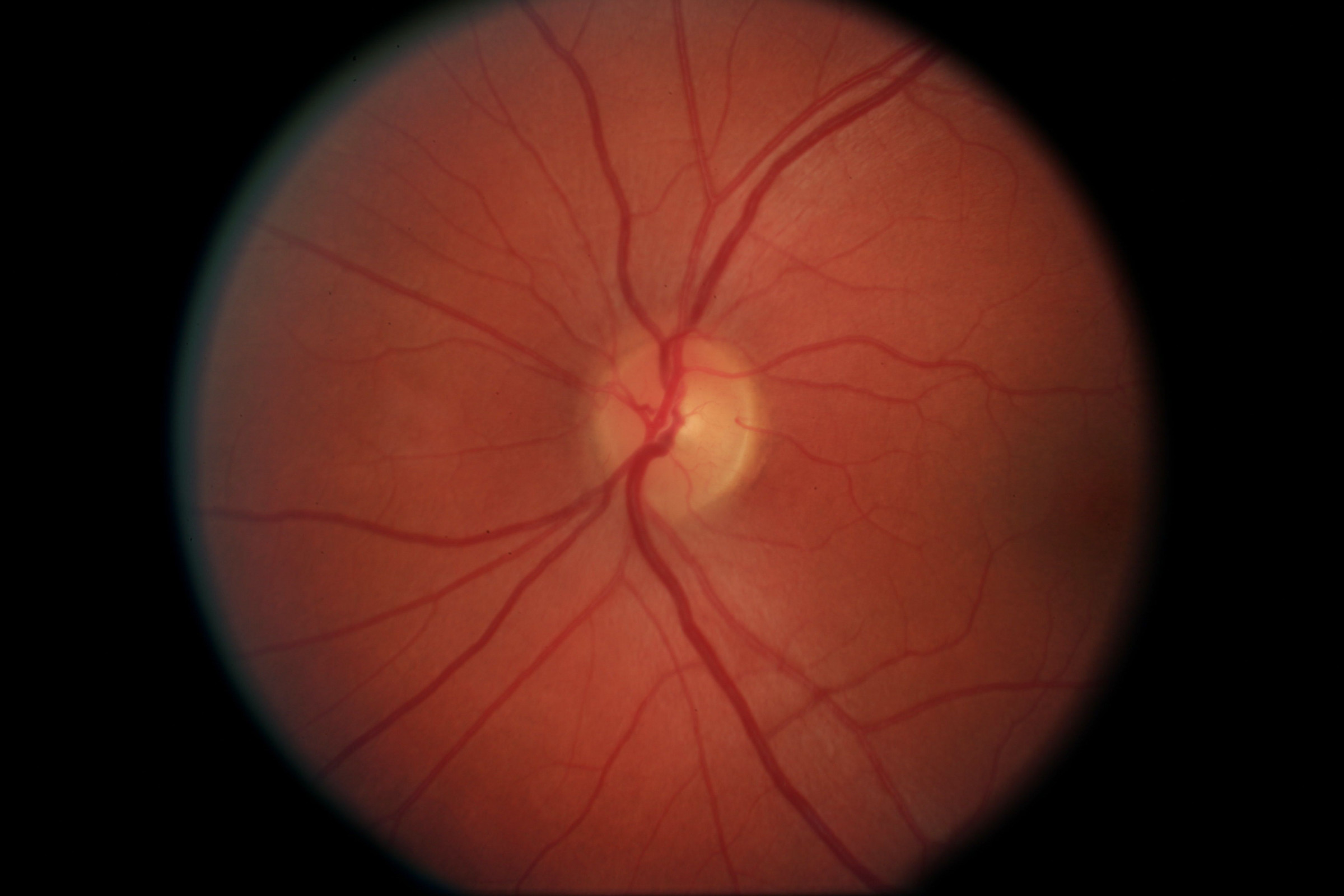// <p>Left Optic Nerve</p>